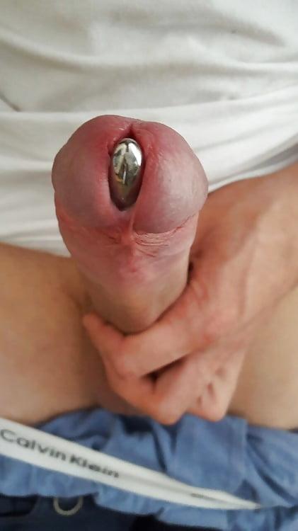 секс меатотомия уретры фото обеих