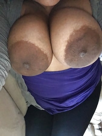 Naked black girls with speckled areolas Massive Dark Areolas 250 Pics Xhamster