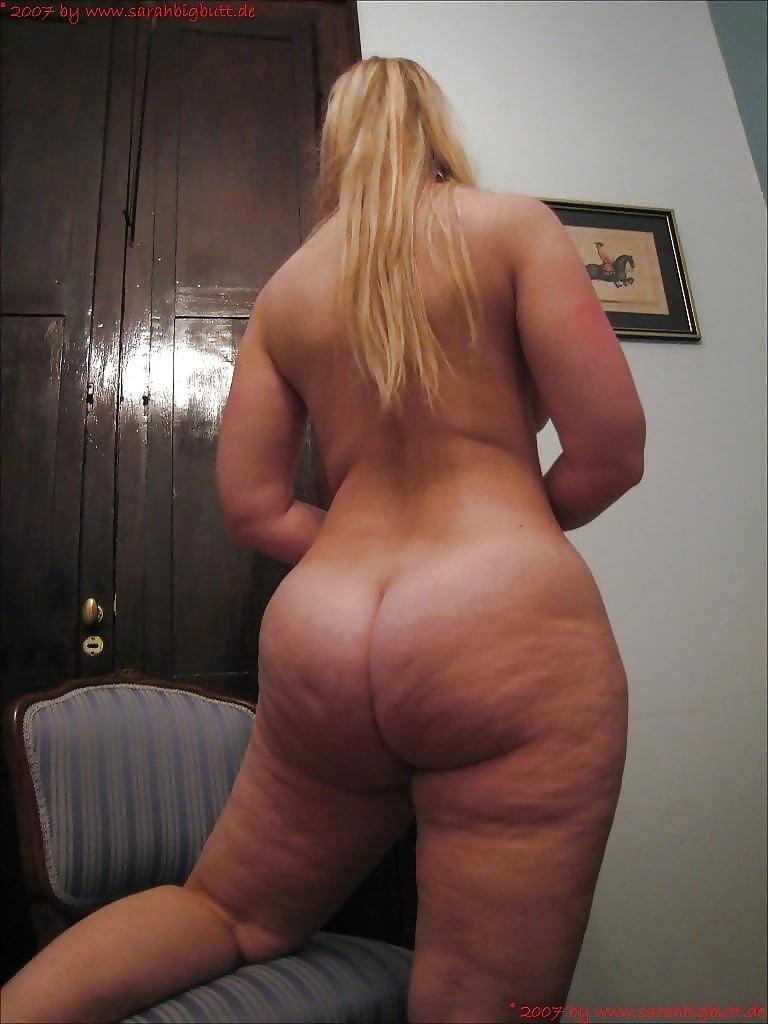 Cellulite asses