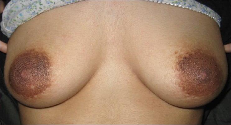 Natural tits beeg-7965