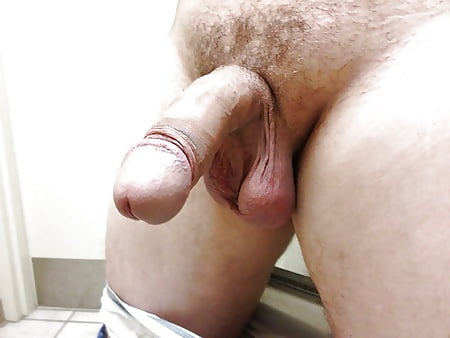 Pic of torn anal
