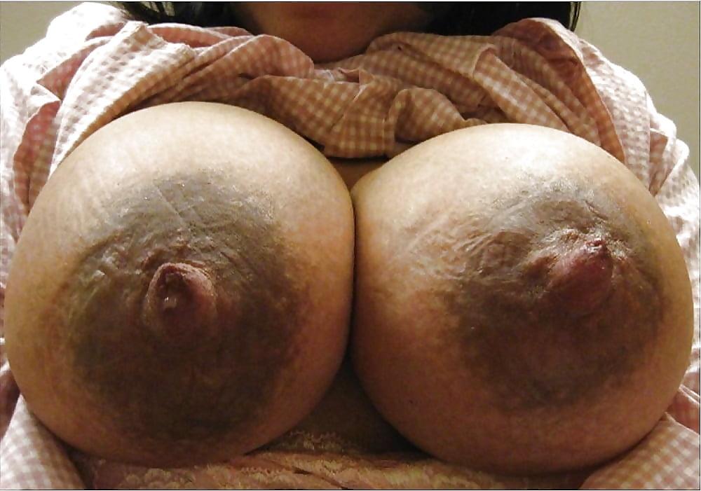 glands-of-montgomery-porn