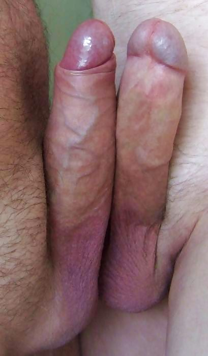 Pearly penile pics and porn images