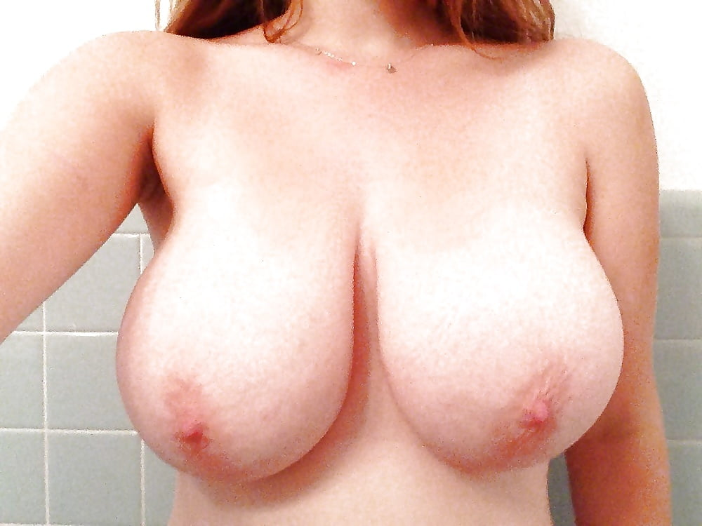 Breast lift areola reduction cost-9538