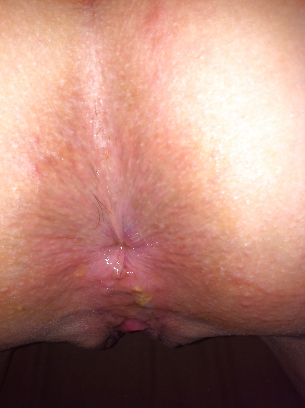Penis pain soothing a sore penis after sex