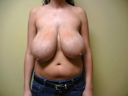 breast lovers dream blue vein vixens