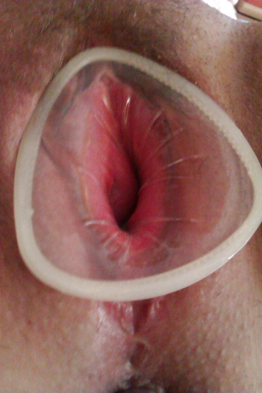 презервативы во влагалище фото - 12