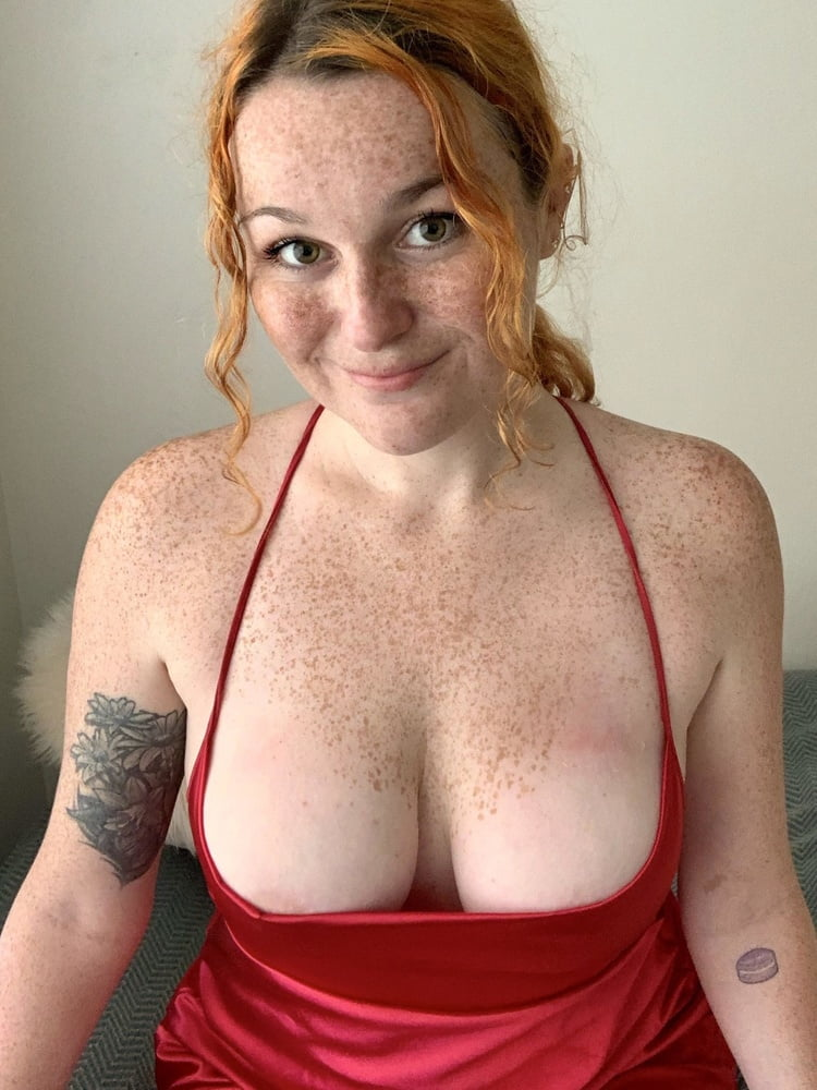 Freckled Collection - 10 Pics