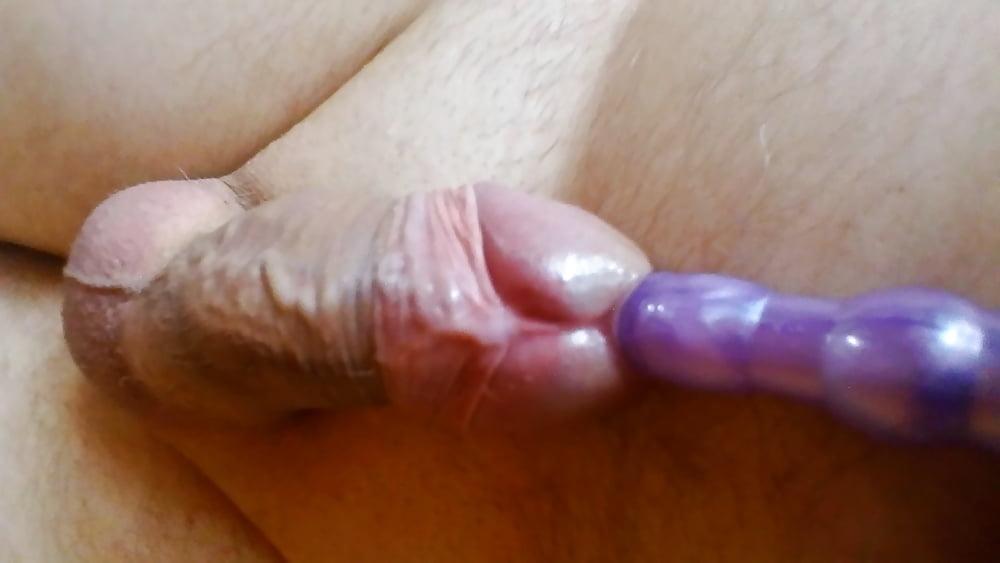 foto-rasshirenie-uretri-na-polovom-chlene-porno