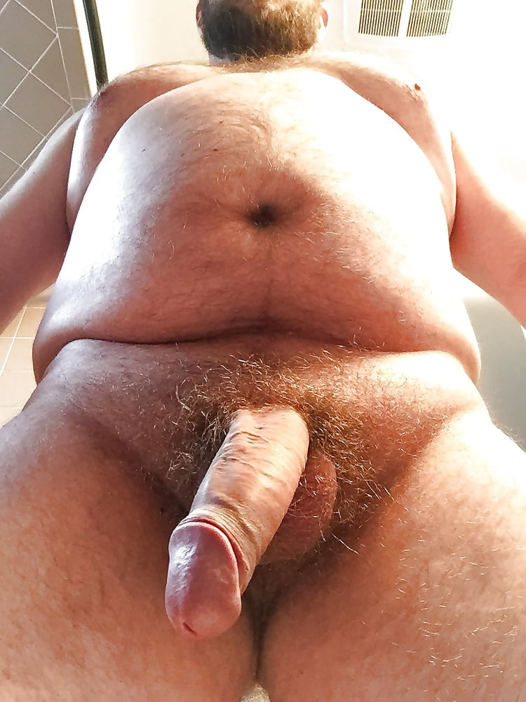 Fat covers penis