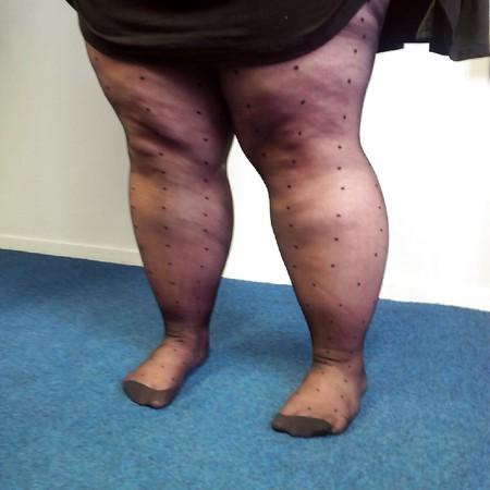 Ssbbw Legs