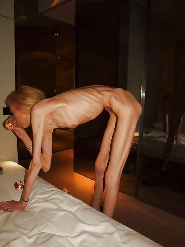 photos-of-naked-anorexic-boys