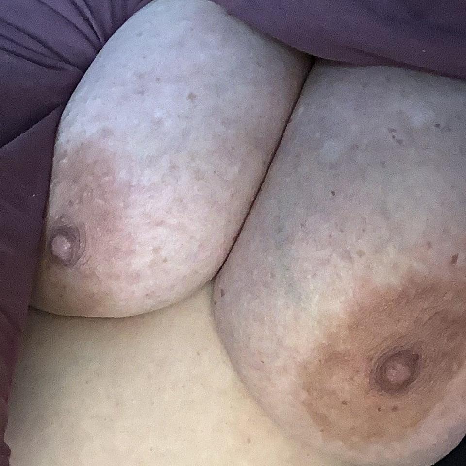 Big nipples bbw with huge pendulous titties need sucking - 4 Pics