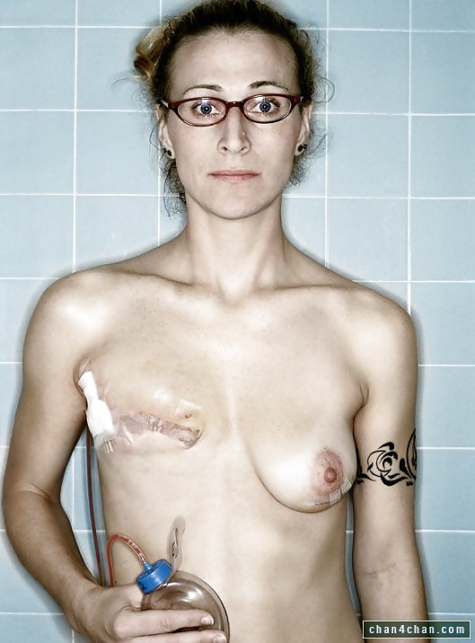 Marisa miller strips off for new marc jacobs cancer campaign