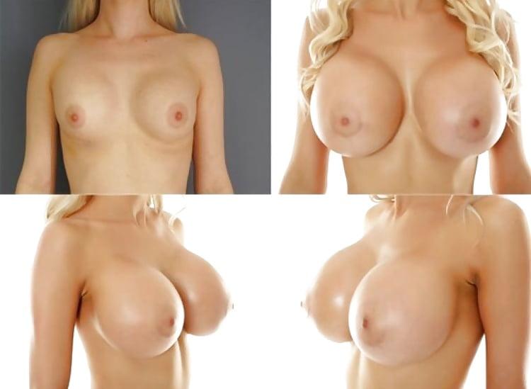 hot-ass-breast-implants-sexy-hollyoaks-women-boobs