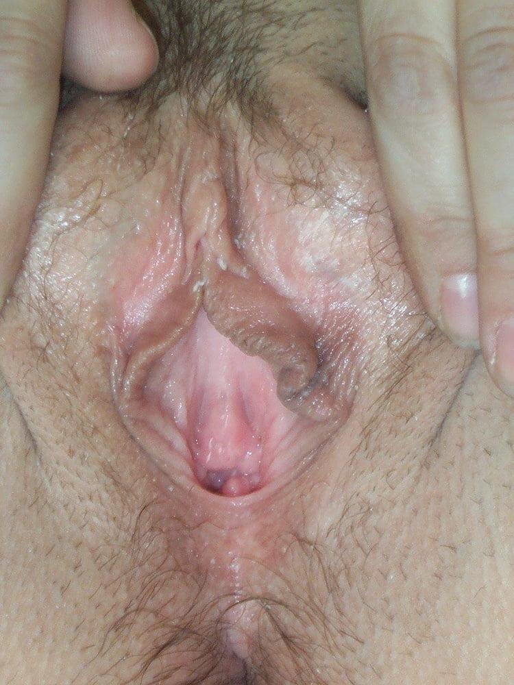 Vagina discharge after ovulation