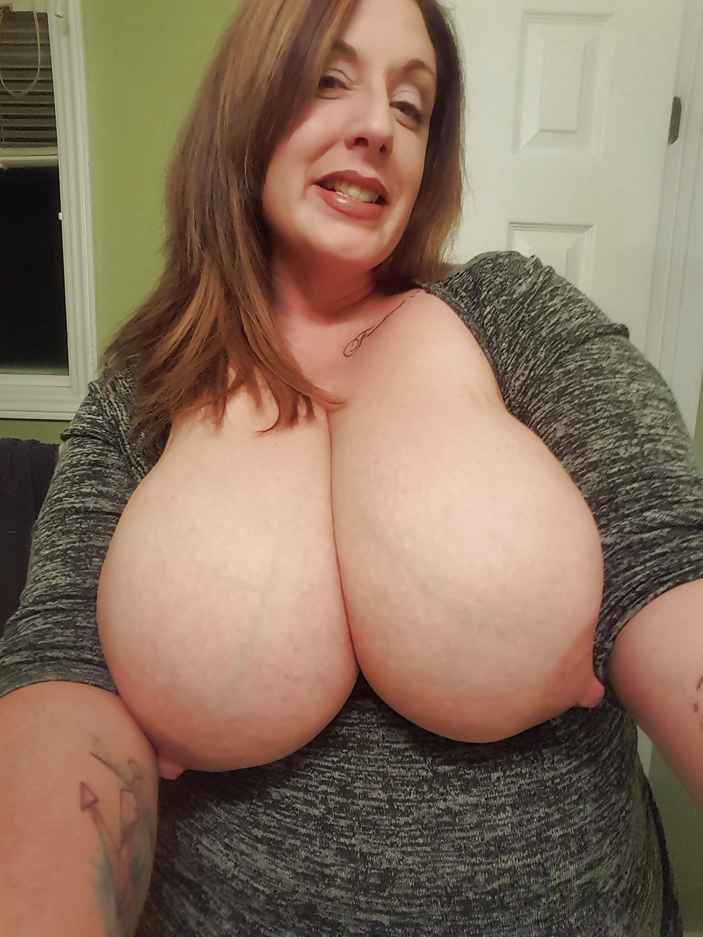 Very large mature breast