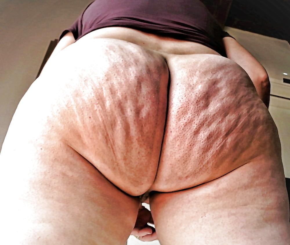 задница с целлюлитом порно - 7